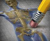 فعالية علاج هشاشة العظام! بين دوائين..