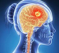 ما هو سرطان الدماغ