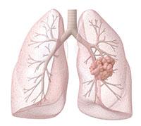 ما هو سرطان الرئة