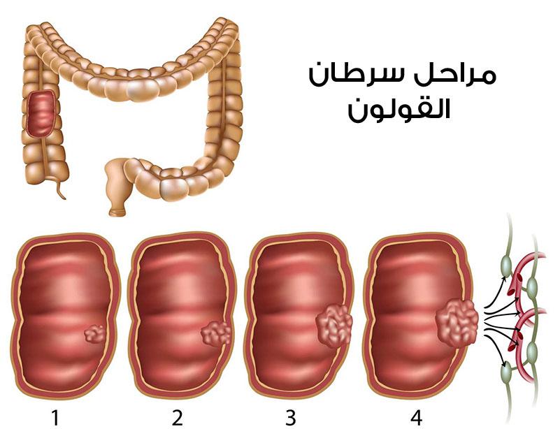 تعرفى على اعراض هامة لسرطان القولون