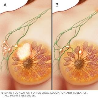 المرحلة الثالثة من سرطان الثدي