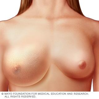 التهاب سرطان الثدي