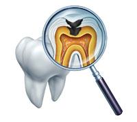 علاج تسوّس الأسنان-