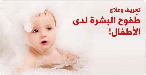 تعريف وعلاج, طفوح البشرة لدى الأطفال