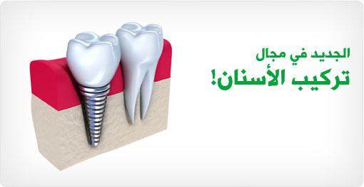 الجديد في مجال تركيب الأسنان!