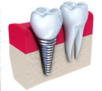مستجدات تركيب الأسنان!