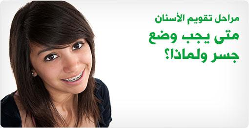 مراحل تقويم الأسنان - متى يجب وضع جسر ولماذا؟