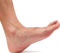 نصائح لمرضى السكري للحفاظ على القدمين