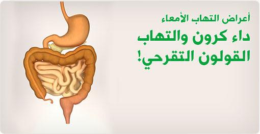 أعراض التهاب الأمعاء، داء كرون والتهاب القولون التقرحي