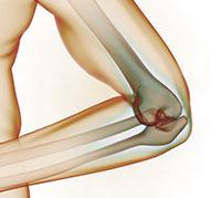 علاج الام العظام وتأهيل الهيكل العظمي بالطرق المدمجة