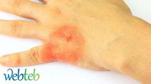 اكزيما الجلد التأتبية - Atopic dermatitis
