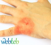 اكزيما الجلد أو Atopic dermatitis