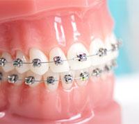 تقويم الأسنان: لماذا، كيف، وكم؟