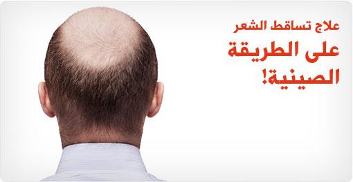 علاج تساقط الشعر على الطريقة الصينية