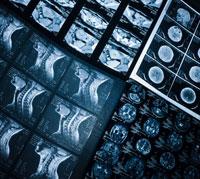 تشخيص مرض السرطان بواسطة فحوصات التصوير المقطعي