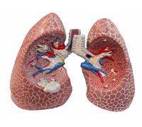 مرض COPD - تشخيص أسباب التدهور جزء من العلاج