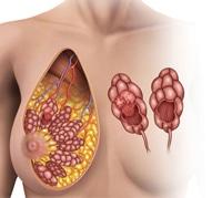 e5fe3dcfa استئصال أورام الثدي - تعرفوا على التحضيرات ,الطرق والعلاجات