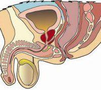 ما هو التهاب البروستاتا