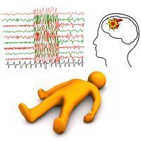الصرع مرض الصرع علاج الصرع اعراض الصرع ويب طب