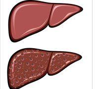 تليف الكبد الناتج عن الكبد الدهني