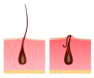 هل أنت عرضة لمشكلة الشعر تحت الجلد؟