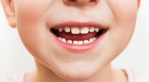 هل تعتني بأسنان طفلك بشكل صحيح؟