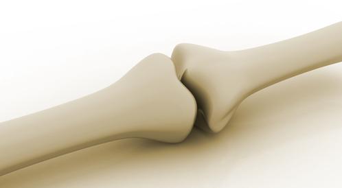 اختبر معلوماتك عن صحة العظام