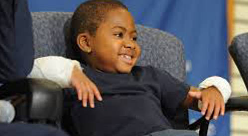 أول جراحة زراعية ليدين طفل في الثامنة من عمره