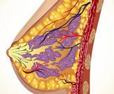 الجراحة الوقائية لسرطان الثدي لا تقلل من احتمالات الوفاة