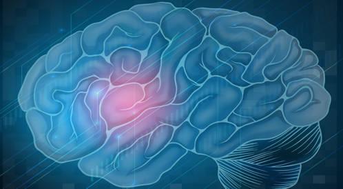 تأثيرات صحية أيضا على أزواج أو زوجات الذين ينجون من السكتة الدماغية
