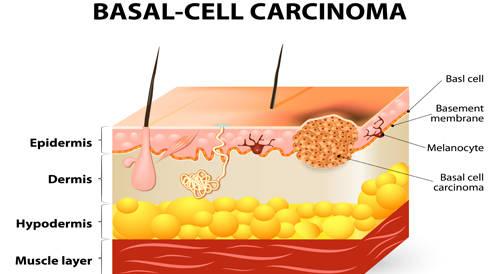 بيمبروليزوماب بالمقارنة مع ايبيموماب لعلاج سرطان الجلد المتقدم