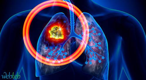 Pembrolizumab ناجع في علاج النقيليات الدماغية لسرطان الرئة من نوع NSCLC