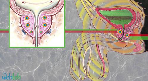استخدام التادالافيل لعلاج تضخم البروستاتا مع وبدون اضطراب الانتصاب