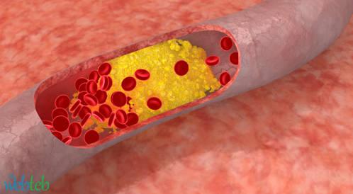الحصول على مصادقة من الأتحاد الاوروبي على ادوية لعلاج الكولسترول