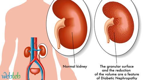 نظائر  فيتامين D  تحسن من وظيفة الكلى في اعتلال الكلية السكري