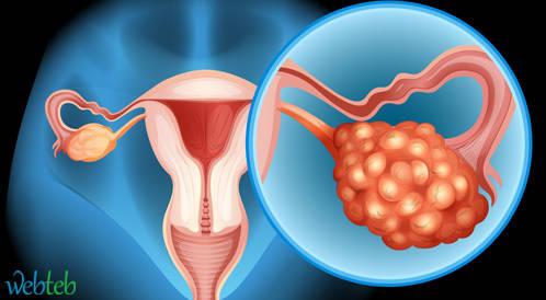 العلاج الكيماوي التقليدي مع أو بدون أفاستين للنساء مع تشخيص أول لسرطان المبيض