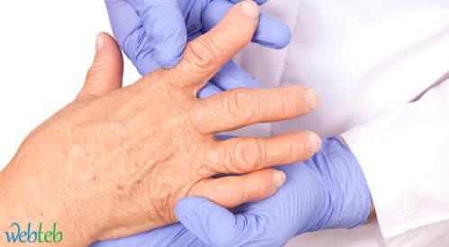 التهاب المفاصل الروماتويدي يقلل من خطر اعتلال الشبكية السكري