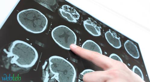 الدبجترين لمنع  السكتة الدماغية   لمرضى الرجفان الأذيني من المسنين