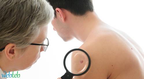 كثرة الشامات على الذراع اليمنى يرفع خطر الإصابة بسرطان الجلد