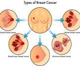 جمعية السرطان توصي بتخفيض عدد فحوصات تصوير الثدي بالأشعة السينية