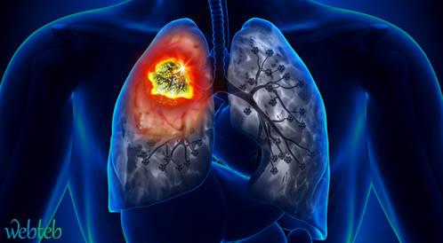 المقارنة بين النيفولوماب والدوستكسيل لسرطان الرئة المتقدم
