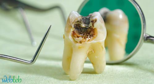 نشر وثيقة معدلة حول علاجات الأسنان خلال فترة الحمل والرضاعة