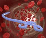 منظمة الصحة العالمية: الايبولا - حالة الطوارئ الاخطر في العصر الحديث
