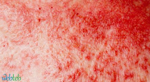 الدمج بين Epacadostat و Ipilimumab لعلاج مرضى سرطان الجلد النقيلي
