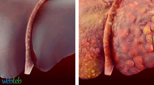 الـ Sofosbuvir  لعلاج التهاب الكبد C يؤدي لتحسن فوري في تليف الكبد