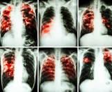 أمراض الرئة المرتبطة بالتصلب متعدد الاجهزة لا تحتاج دواء