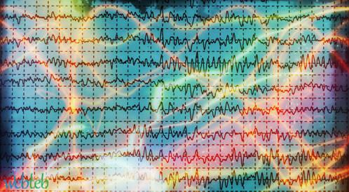 تشخيص تزامن متزايد لدى مرضى شلل الرعاش عن طريق فحص EEG