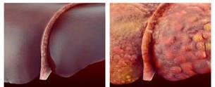 الأورام الوعائية العملاقة في الكبد  تزيد من خطر التمزق والنزيف