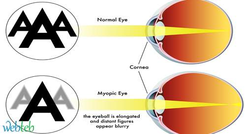 مرض جفاف العين بعد الجراحة الانكسارية (Refractive surgery)