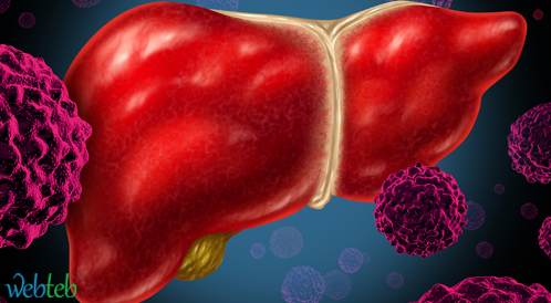تراكم الدهون داخل البطن يتنبأ بالتقدم السريع لسرطنة خلايا الكبد